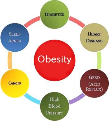 Stress and obesity essay